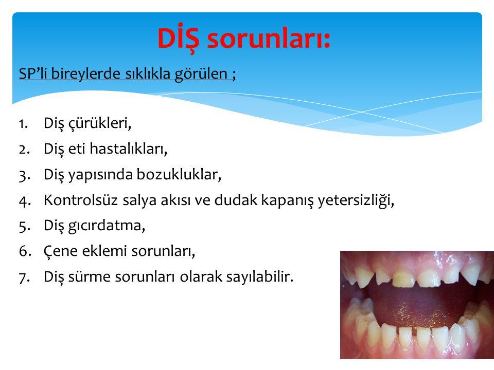 DİŞ sorunları: SP'li bireylerde sıklıkla görülen ; 1.Diş çürükleri, 2.Diş eti hastalıkları, 3.Diş yapısında bozukluklar, 4.Kontrolsüz salya akısı ve d