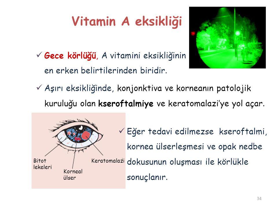 34 Vitamin A eksikliği  Gece körlüğü, A vitamini eksikliğinin en erken belirtilerinden biridir.  Aşırı eksikliğinde, konjonktiva ve korneanın patolo