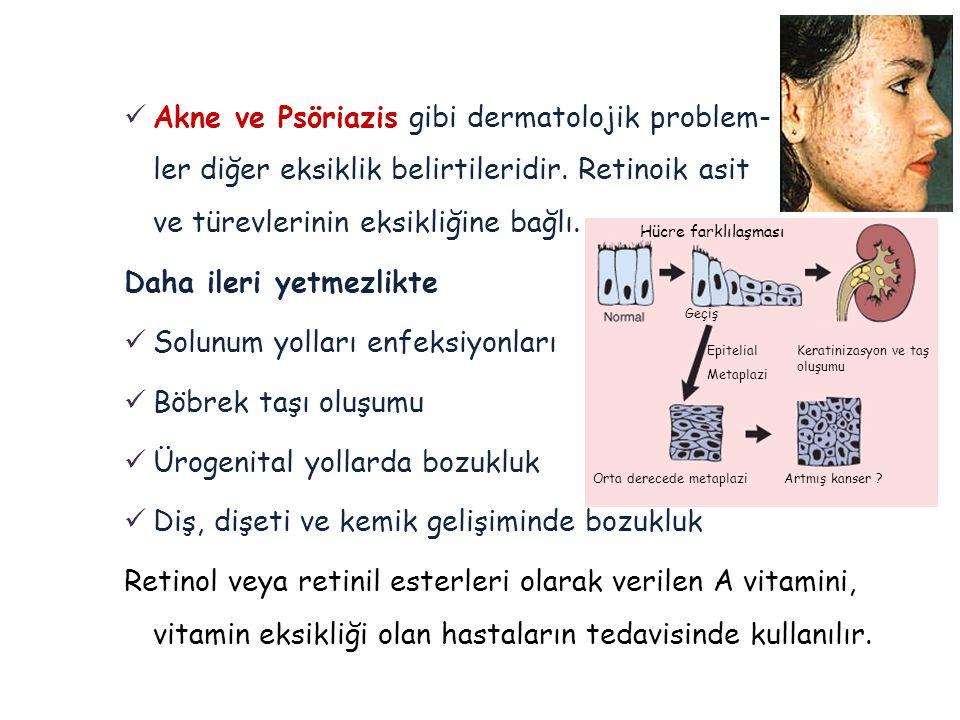  Akne ve Psöriazis gibi dermatolojik problem- ler diğer eksiklik belirtileridir. Retinoik asit ve türevlerinin eksikliğine bağlı. Daha ileri yetmezli