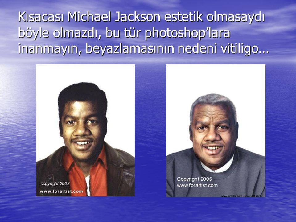 Kısacası Michael Jackson estetik olmasaydı böyle olmazdı, bu tür photoshop'lara inanmayın, beyazlamasının nedeni vitiligo…