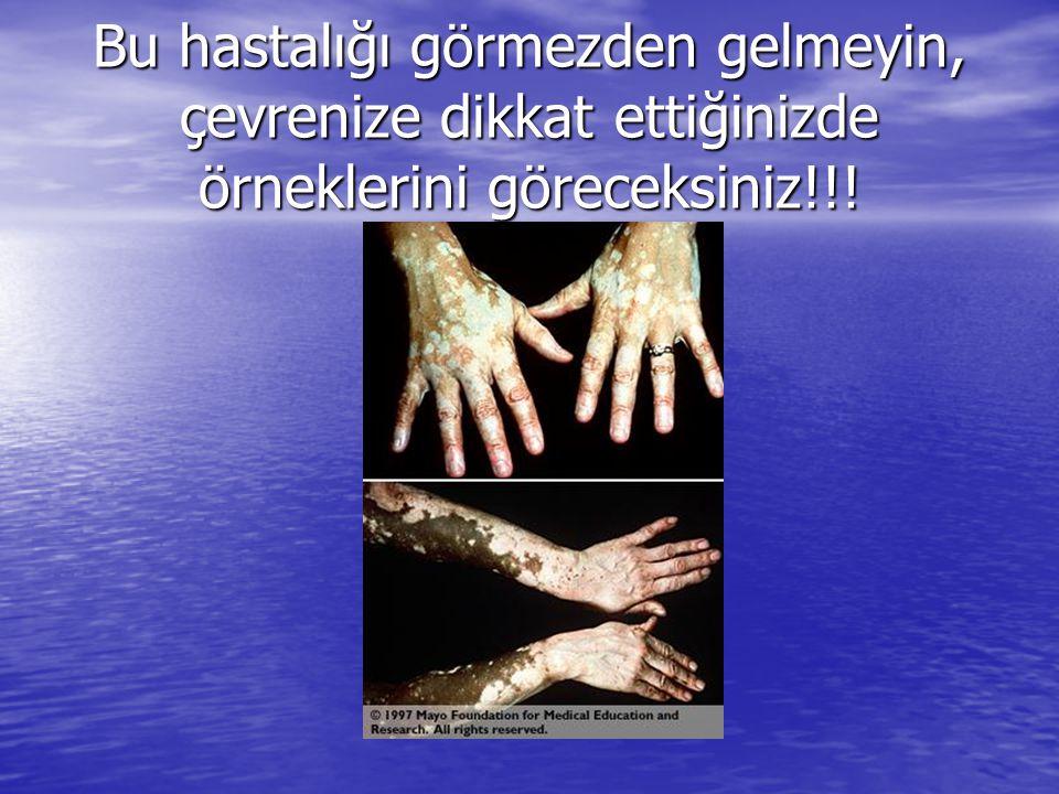 Bu hastalığı görmezden gelmeyin, çevrenize dikkat ettiğinizde örneklerini göreceksiniz!!!