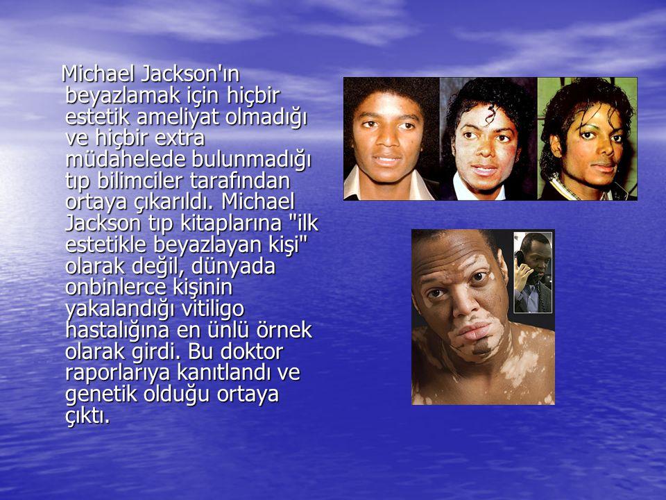 Michael Jackson'ın beyazlamak için hiçbir estetik ameliyat olmadığı ve hiçbir extra müdahelede bulunmadığı tıp bilimciler tarafından ortaya çıkarıldı.