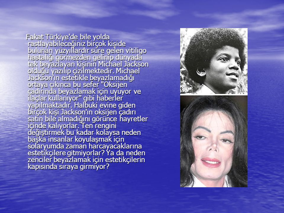Fakat Türkiye'de bile yolda rastlayabileceğiniz birçok kişide bulunan yüzyıllardır süre gelen vitiligo hastalığı görmezden gelinip dünyada tek beyazla