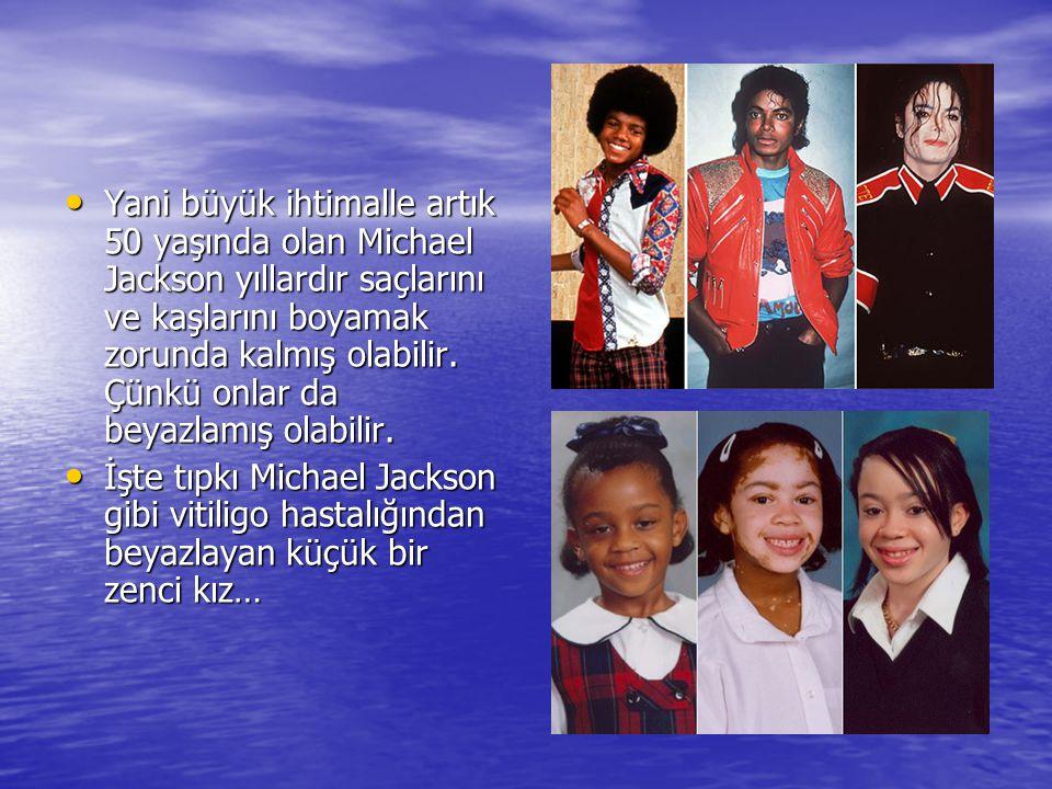 • Yani büyük ihtimalle artık 50 yaşında olan Michael Jackson yıllardır saçlarını ve kaşlarını boyamak zorunda kalmış olabilir. Çünkü onlar da beyazlam