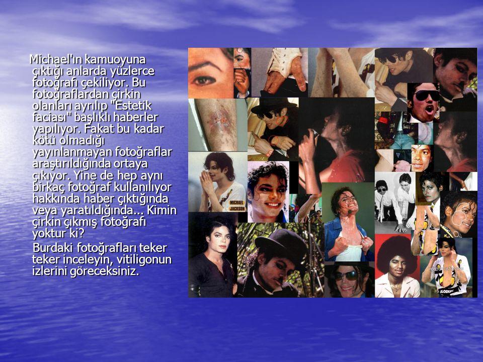 Michael'ın kamuoyuna çıktığı anlarda yüzlerce fotoğrafı çekiliyor. Bu fotoğraflardan çirkin olanları ayrılıp
