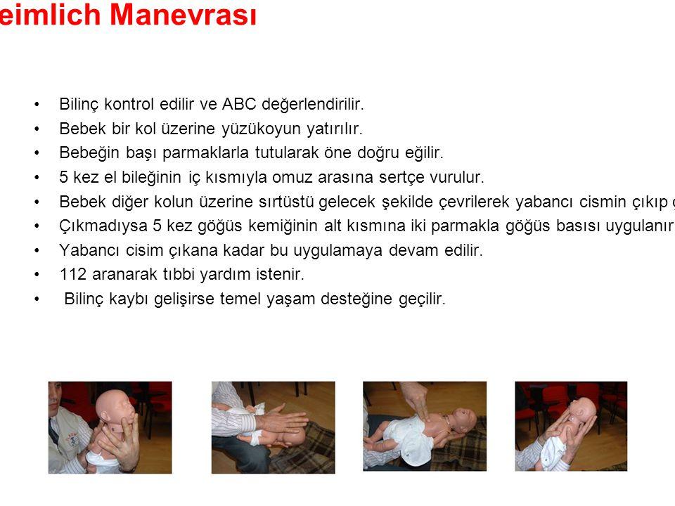 Bebeklerde Heimlich Manevrası •Bilinç kontrol edilir ve ABC değerlendirilir. •Bebek bir kol üzerine yüzükoyun yatırılır. •Bebeğin başı parmaklarla tut