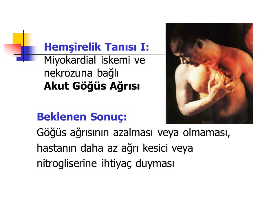 Hemşirelik Tanısı I: Miyokardial iskemi ve nekrozuna bağlı Akut Göğüs Ağrısı Beklenen Sonuç: Göğüs ağrısının azalması veya olmaması, hastanın daha az