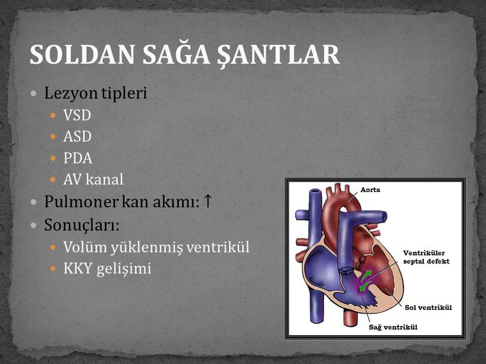  Lezyon tipleri  VSD  ASD  PDA  AV kanal  Pulmoner kan akımı: ↑  Sonuçları:  Volüm yüklenmiş ventrikül  KKY gelişimi SOLDAN SAĞA ŞANTLAR