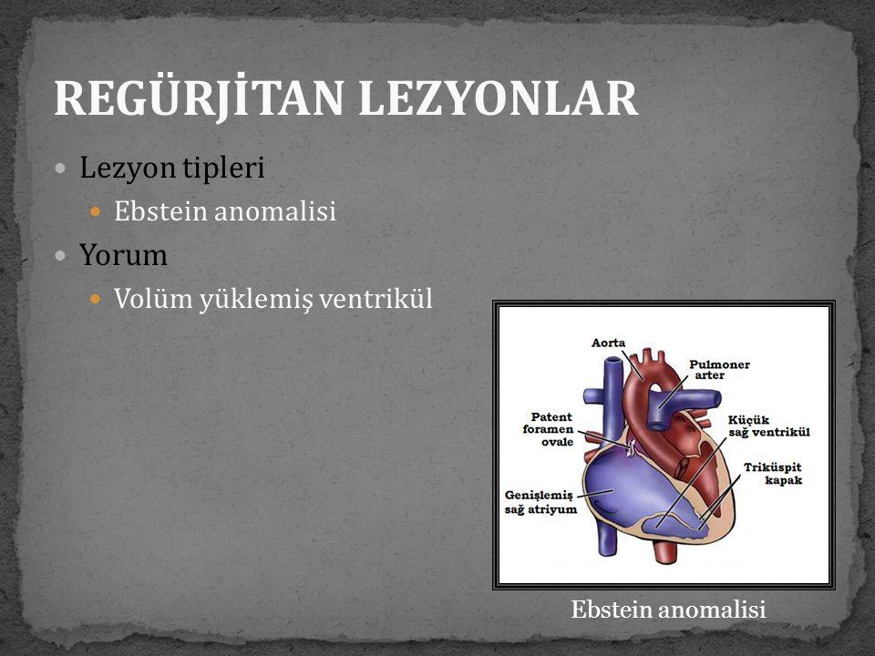  Lezyon tipleri  Ebstein anomalisi  Yorum  Volüm yüklemiş ventrikül Ebstein anomalisi REGÜRJİTAN LEZYONLAR