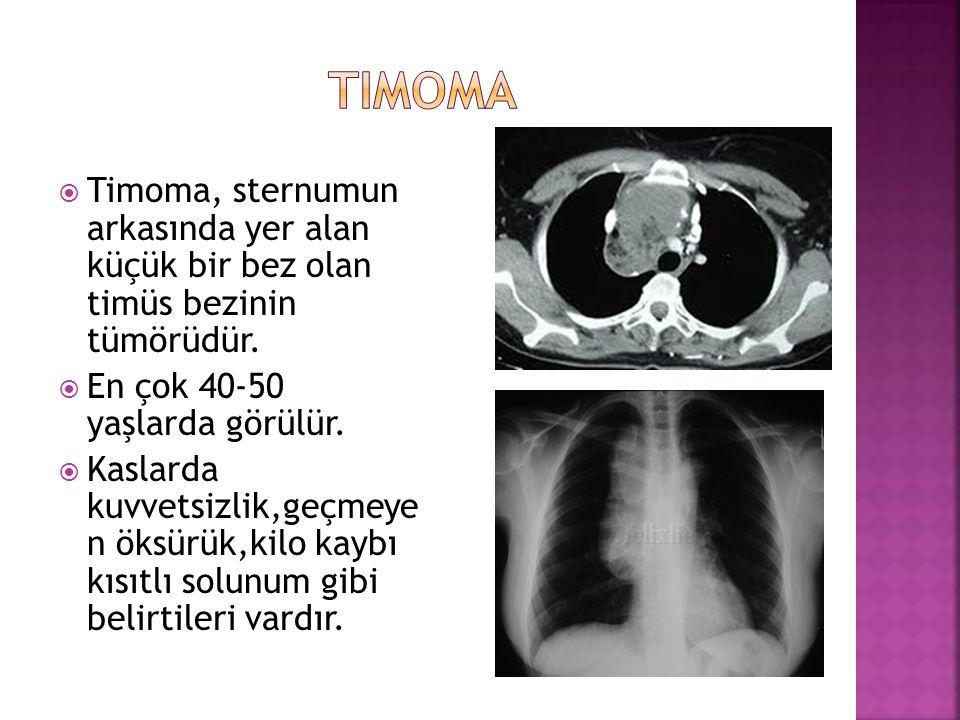  Timoma, sternumun arkasında yer alan küçük bir bez olan timüs bezinin tümörüdür.  En çok 40-50 yaşlarda görülür.  Kaslarda kuvvetsizlik,geçmeye n