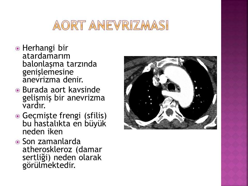  Herhangi bir atardamarım balonlaşma tarzında genişlemesine anevrizma denir.  Burada aort kavsinde gelişmiş bir anevrizma vardır.  Geçmişte frengi
