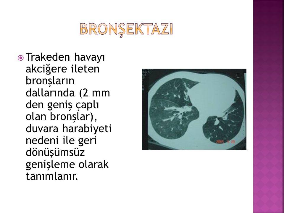  Trakeden havayı akciğere ileten bronşların dallarında (2 mm den geniş çaplı olan bronşlar), duvara harabiyeti nedeni ile geri dönüşümsüz genişleme o
