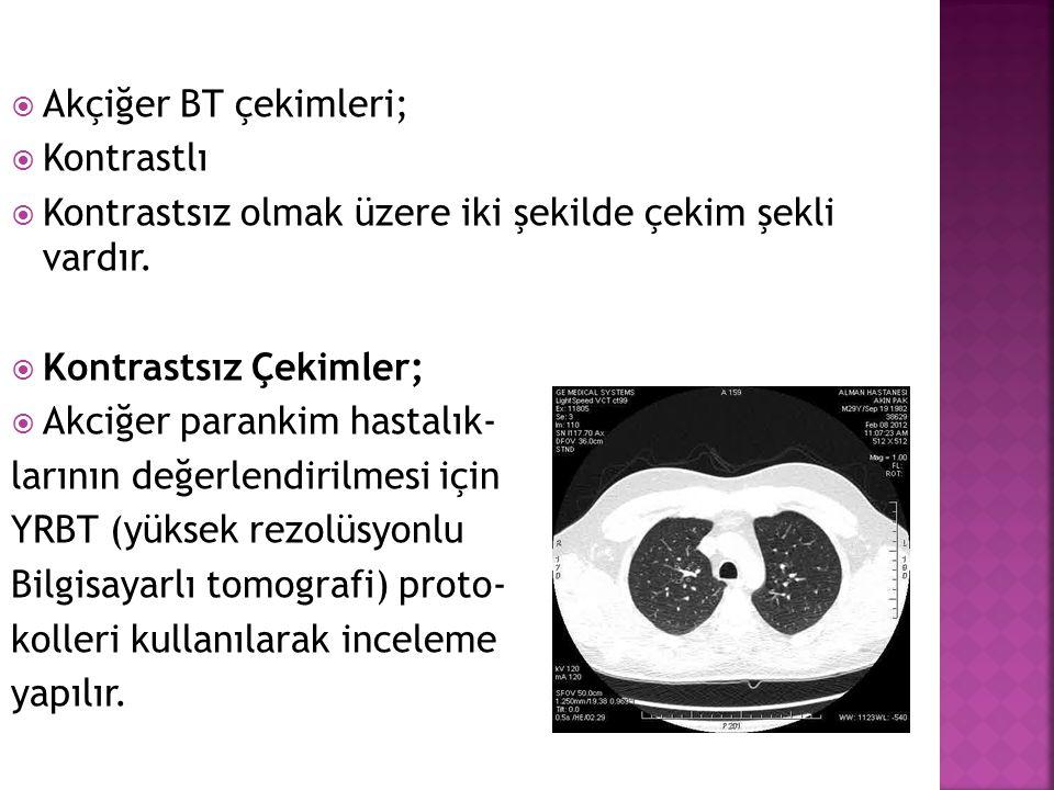  Akçiğer BT çekimleri;  Kontrastlı  Kontrastsız olmak üzere iki şekilde çekim şekli vardır.  Kontrastsız Çekimler;  Akciğer parankim hastalık- la