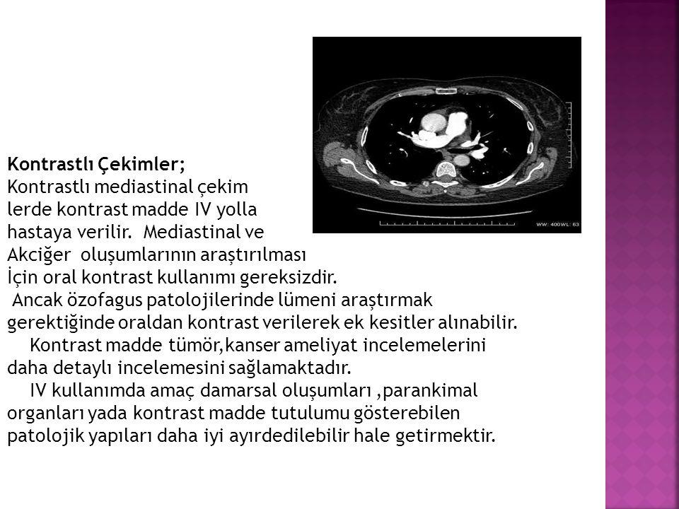 Kontrastlı Çekimler; Kontrastlı mediastinal çekim lerde kontrast madde IV yolla hastaya verilir. Mediastinal ve Akciğer oluşumlarının araştırılması İç
