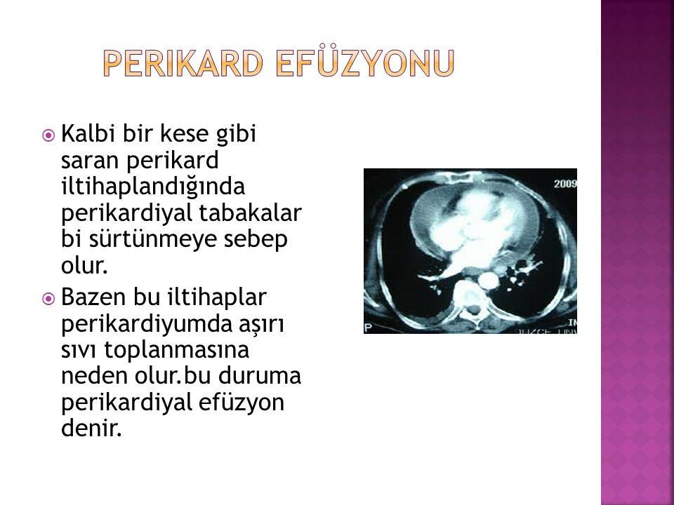  Kalbi bir kese gibi saran perikard iltihaplandığında perikardiyal tabakalar bi sürtünmeye sebep olur.  Bazen bu iltihaplar perikardiyumda aşırı sıv