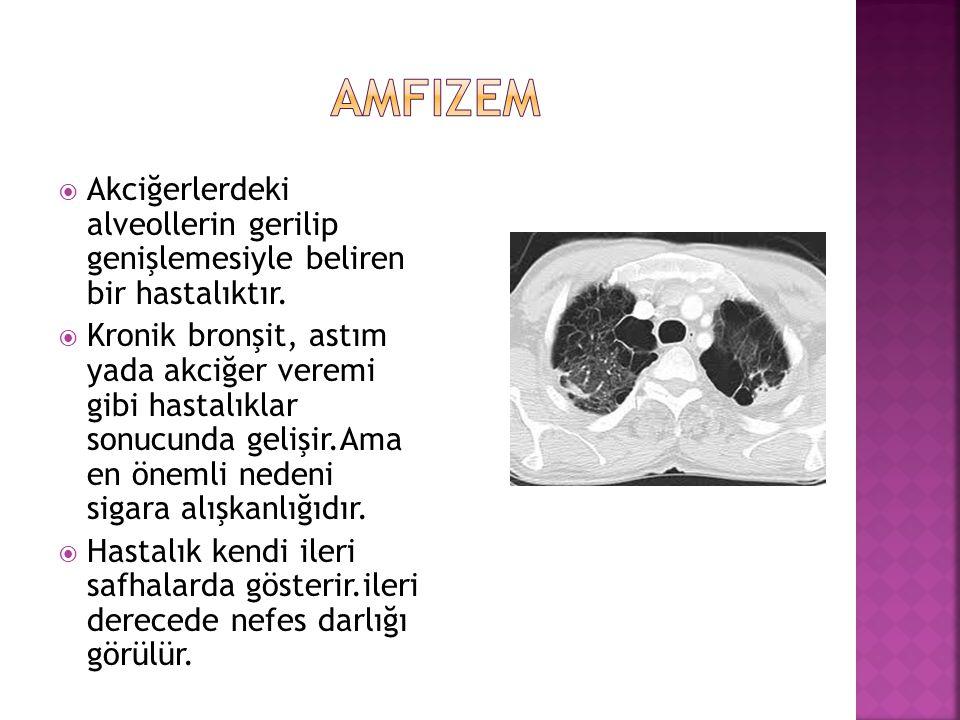  Akciğerlerdeki alveollerin gerilip genişlemesiyle beliren bir hastalıktır.  Kronik bronşit, astım yada akciğer veremi gibi hastalıklar sonucunda ge