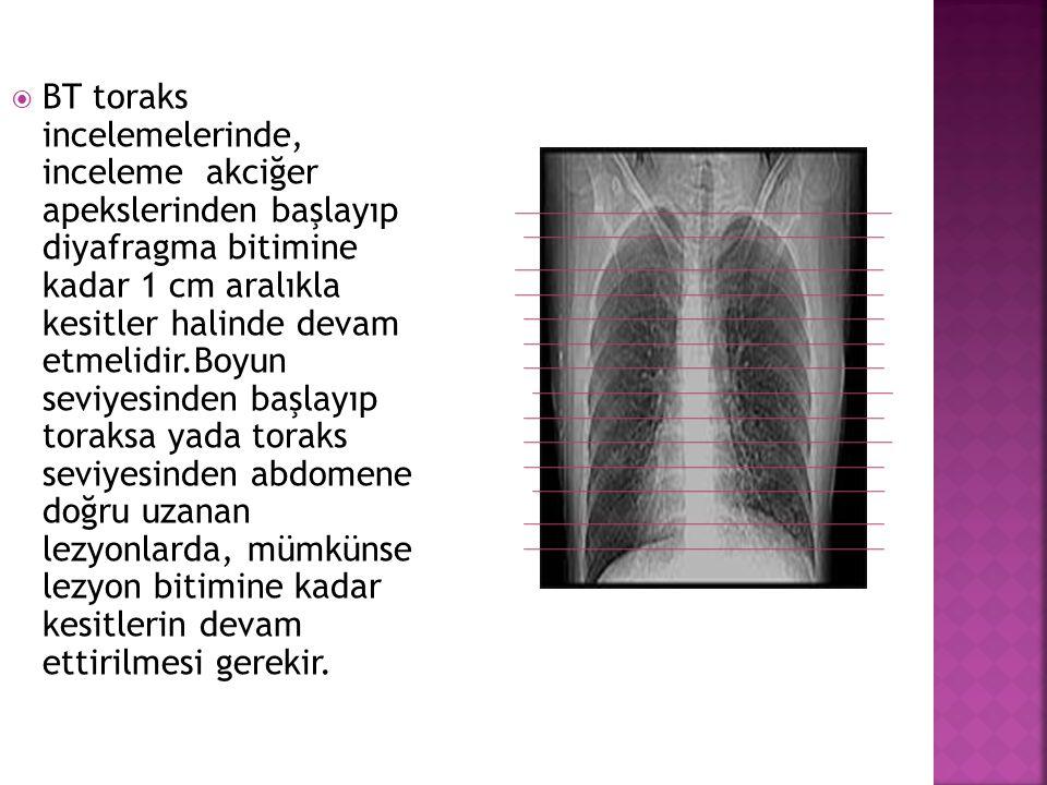  BT toraks incelemelerinde, inceleme akciğer apekslerinden başlayıp diyafragma bitimine kadar 1 cm aralıkla kesitler halinde devam etmelidir.Boyun se