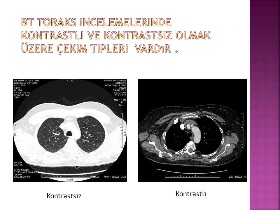 Kontrastlı Çekimler; Kontrastlı mediastinal çekim lerde kontrast madde IV yolla hastaya verilir.