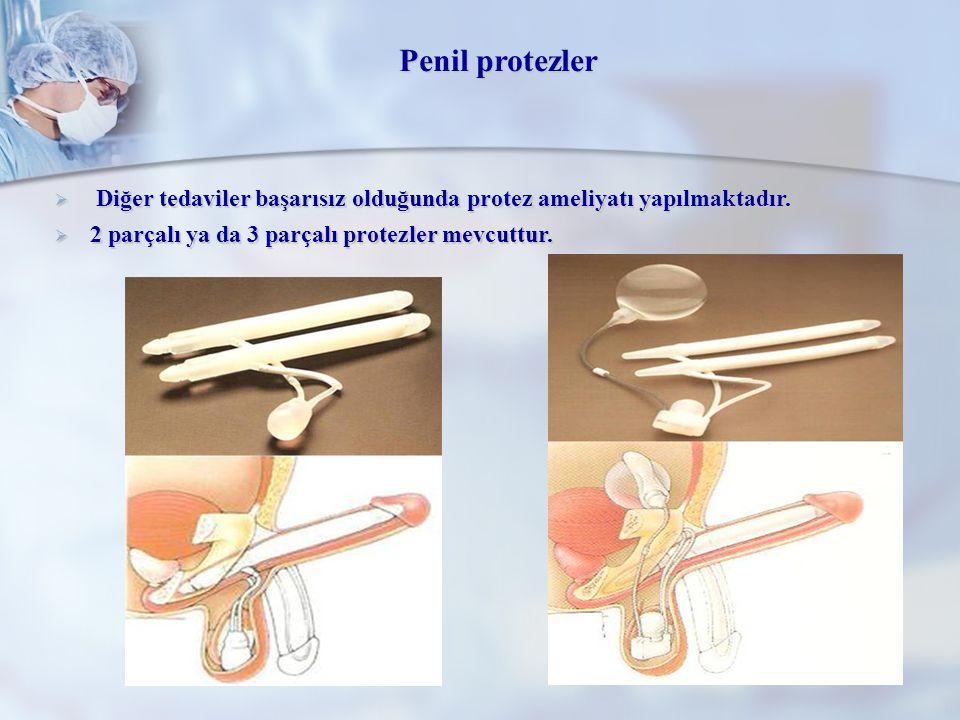  Diğer tedaviler başarısız olduğunda protez ameliyatı yapılmaktadır.  2 parçalı ya da 3 parçalı protezler mevcuttur. Penil protezler