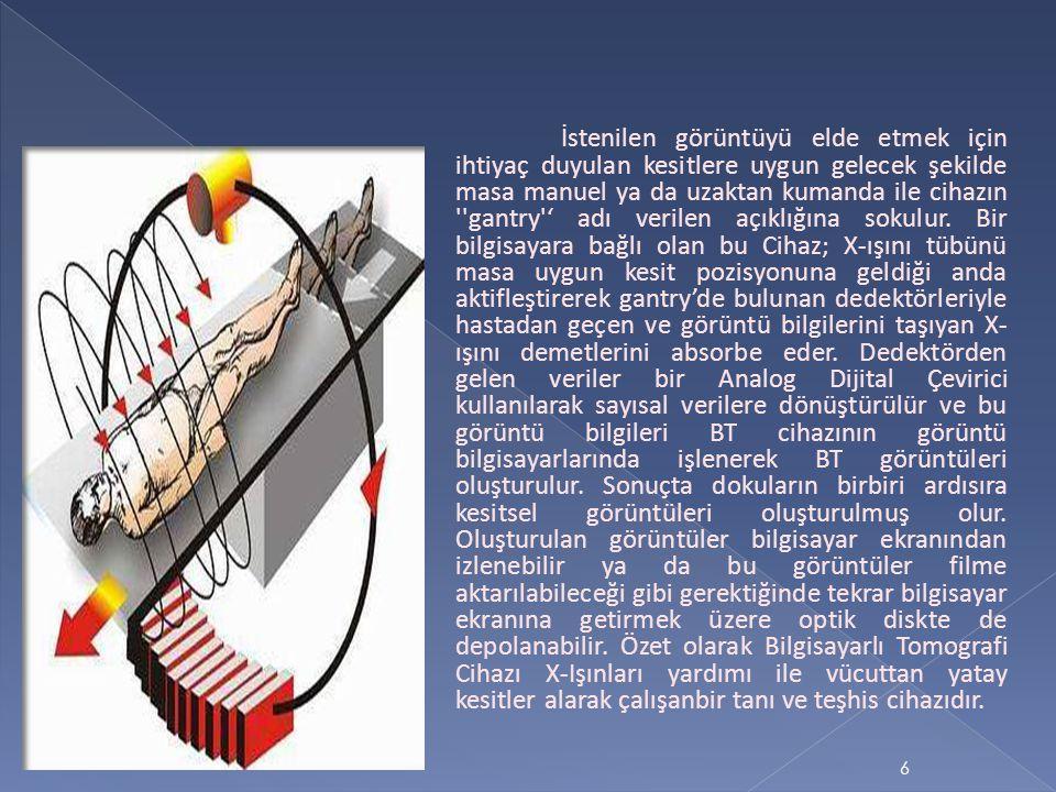 7 Göğüs kafesi ve batın içi görüntülemelerde kullanım alanı çok geniştir.