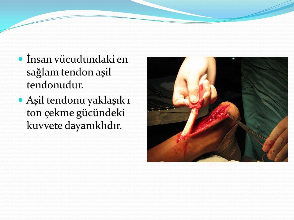  İnsan vücudundaki en sağlam tendon aşil tendonudur.  Aşil tendonu yaklaşık 1 ton çekme gücündeki kuvvete dayanıklıdır.