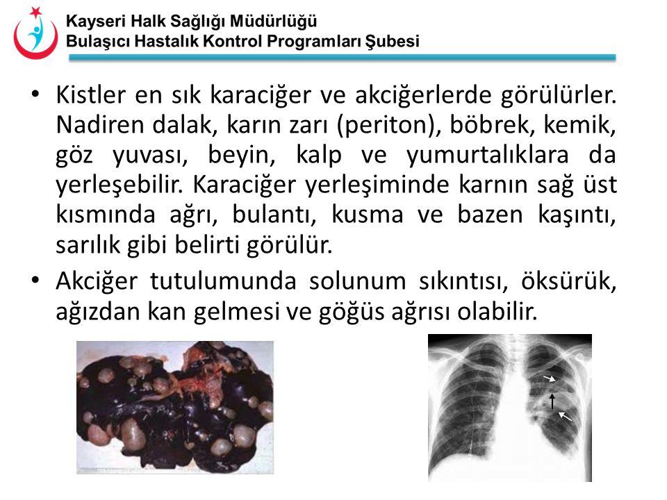• Kistler en sık karaciğer ve akciğerlerde görülürler. Nadiren dalak, karın zarı (periton), böbrek, kemik, göz yuvası, beyin, kalp ve yumurtalıklara d