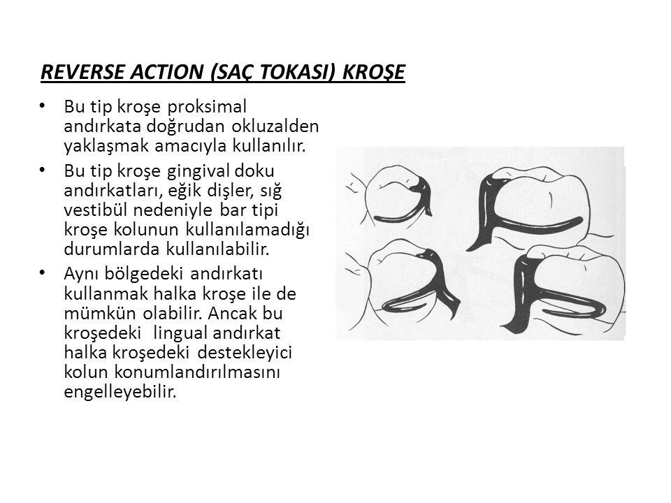 REVERSE ACTION (SAÇ TOKASI) KROŞE • Bu tip kroşe proksimal andırkata doğrudan okluzalden yaklaşmak amacıyla kullanılır.