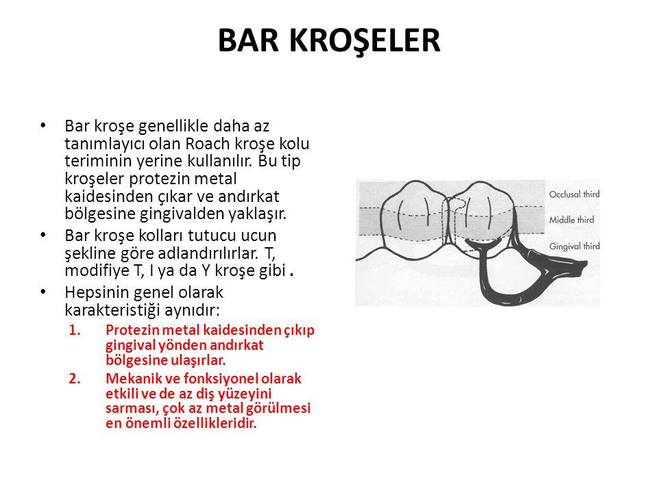 BAR KROŞELER • Bar kroşe genellikle daha az tanımlayıcı olan Roach kroşe kolu teriminin yerine kullanılır.