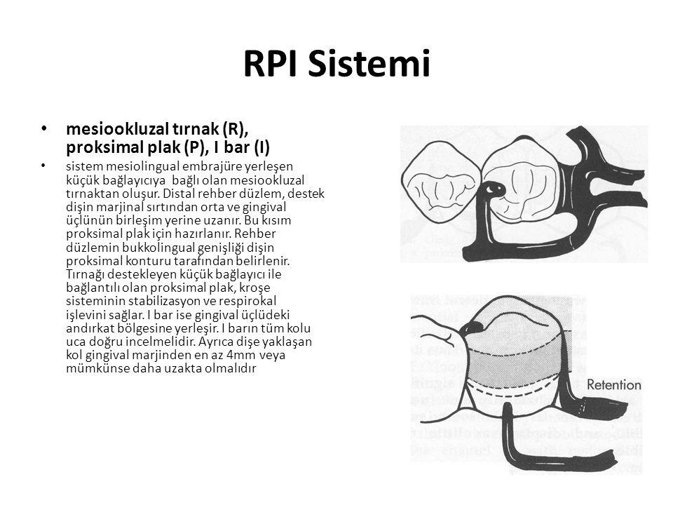 RPI Sistemi • mesiookluzal tırnak (R), proksimal plak (P), I bar (I) • sistem mesiolingual embrajüre yerleşen küçük bağlayıcıya bağlı olan mesiookluzal tırnaktan oluşur.