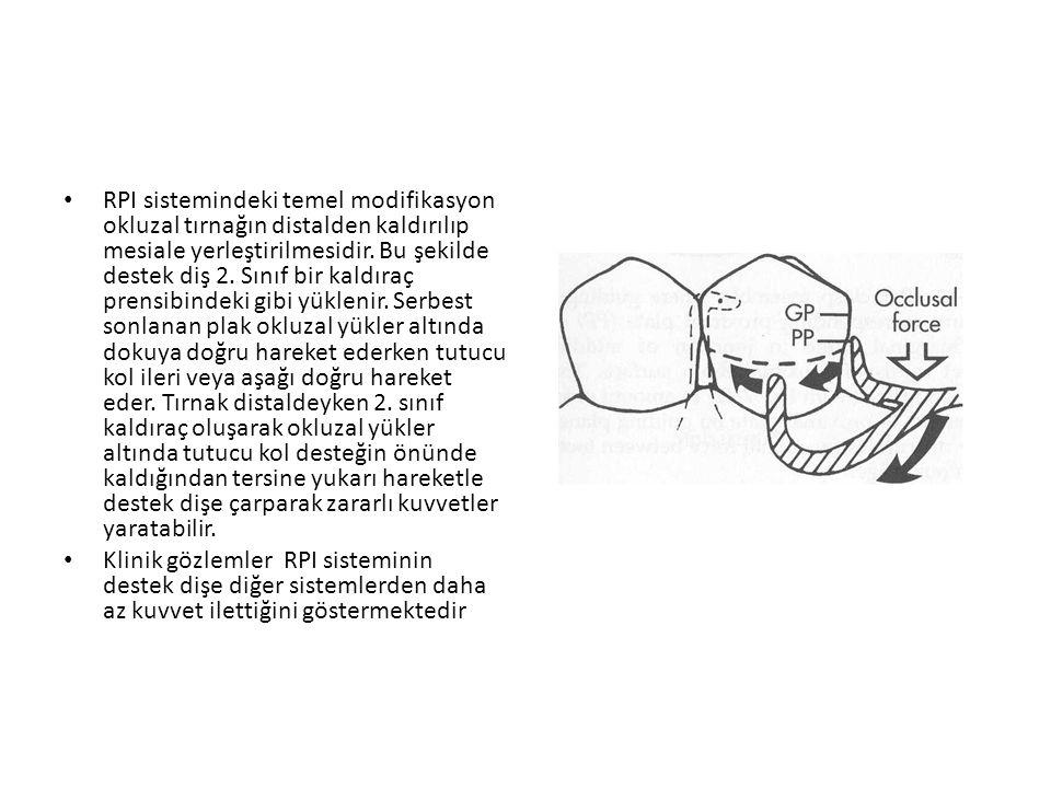 • RPI sistemindeki temel modifikasyon okluzal tırnağın distalden kaldırılıp mesiale yerleştirilmesidir.