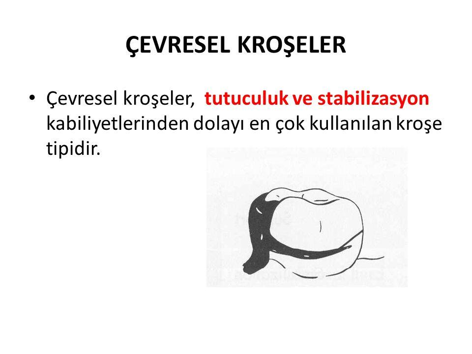 ÇEVRESEL KROŞELER • Çevresel kroşeler, tutuculuk ve stabilizasyon kabiliyetlerinden dolayı en çok kullanılan kroşe tipidir.