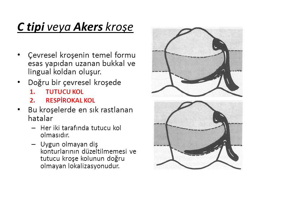C tipi veya Akers kroşe • Çevresel kroşenin temel formu esas yapıdan uzanan bukkal ve lingual koldan oluşur.