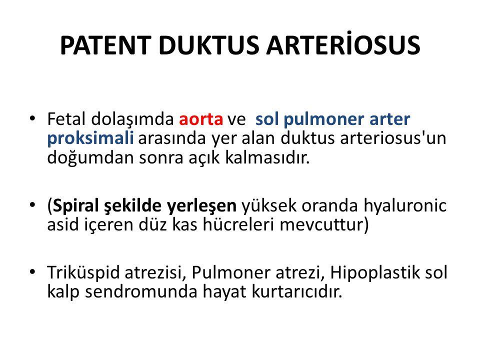 PATENT DUKTUS ARTERİOSUS • Fetal dolaşımda aorta ve sol pulmoner arter proksimali arasında yer alan duktus arteriosus'un doğumdan sonra açık kalmasıdı