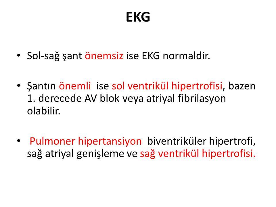 EKG • Sol-sağ şant önemsiz ise EKG normaldir. • Şantın önemli ise sol ventrikül hipertrofisi, bazen 1. derecede AV blok veya atriyal fibrilasyon olabi