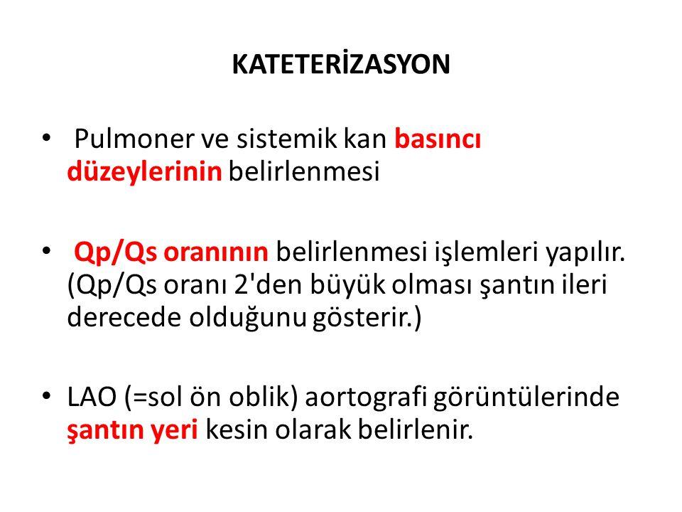 KATETERİZASYON • Pulmoner ve sistemik kan basıncı düzeylerinin belirlenmesi • Qp/Qs oranının belirlenmesi işlemleri yapılır. (Qp/Qs oranı 2'den büyük