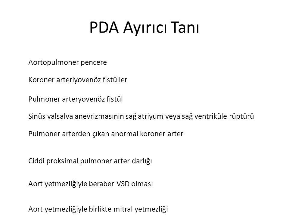 PDA Ayırıcı Tanı Aortopulmoner pencere Koroner arteriyovenöz fistüller Pulmoner arteryovenöz fistül Sinüs valsalva anevrizmasının sağ atriyum veya sağ