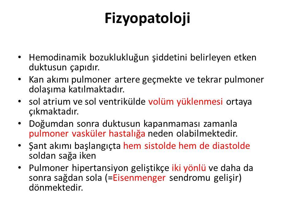 Fizyopatoloji • Hemodinamik bozuklukluğun şiddetini belirleyen etken duktusun çapıdır. • Kan akımı pulmoner artere geçmekte ve tekrar pulmoner dolaşım