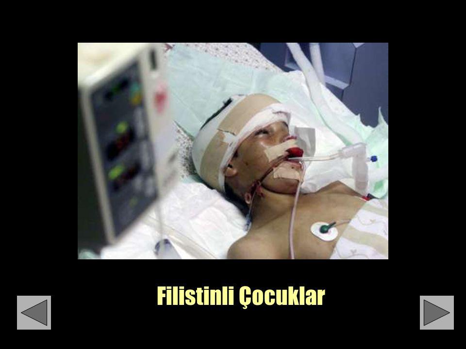 4-Yaşındaki bir bebeğin günlüğünden: Hanan Mikhael Ashrawi nin hikayesi Yarın bandajlarım kalkıcak..