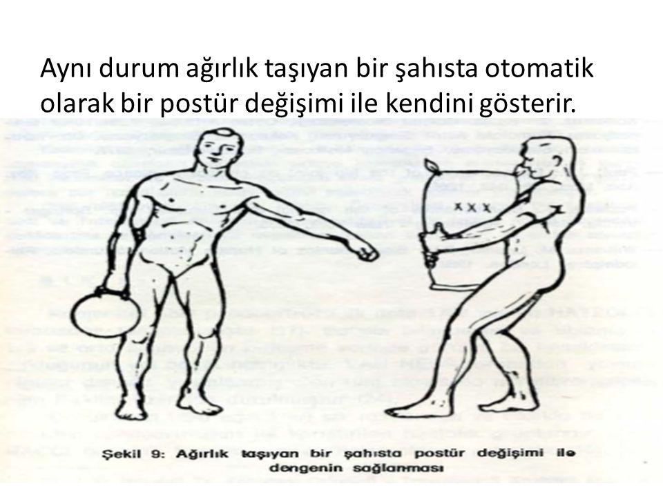 Aynı durum ağırlık taşıyan bir şahısta otomatik olarak bir postür değişimi ile kendini gösterir.