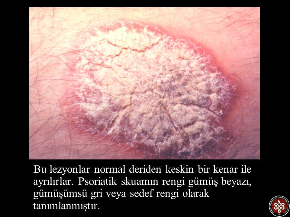 Bu lezyonlar normal deriden keskin bir kenar ile ayrılırlar. Psoriatik skuamın rengi gümüş beyazı, gümüşümsü gri veya sedef rengi olarak tanımlanmıştı