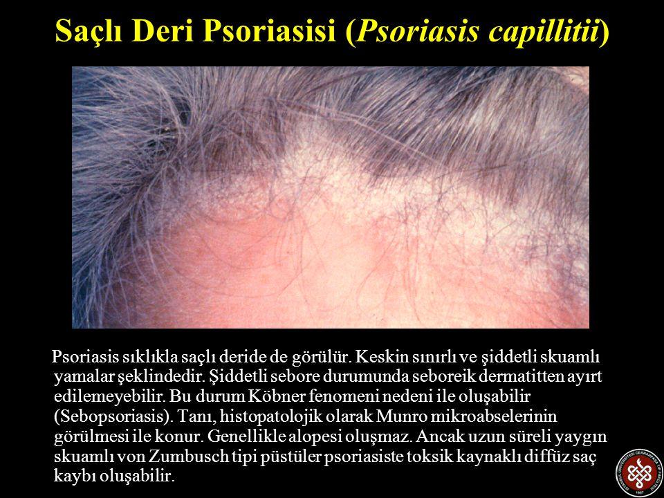 Saçlı Deri Psoriasisi (Psoriasis capillitii) Psoriasis sıklıkla saçlı deride de görülür. Keskin sınırlı ve şiddetli skuamlı yamalar şeklindedir. Şidde