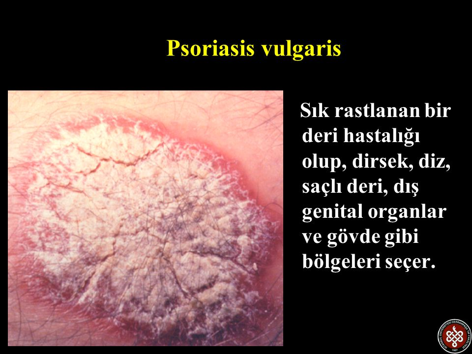 Psoriasisin nedeni Psoriasisin nedeni henüz bilinmemektedir.