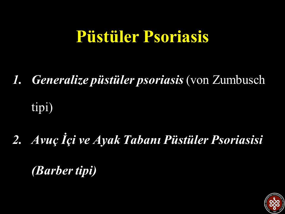 Püstüler Psoriasis 1.Generalize püstüler psoriasis (von Zumbusch tipi) 2.Avuç İçi ve Ayak Tabanı Püstüler Psoriasisi (Barber tipi)