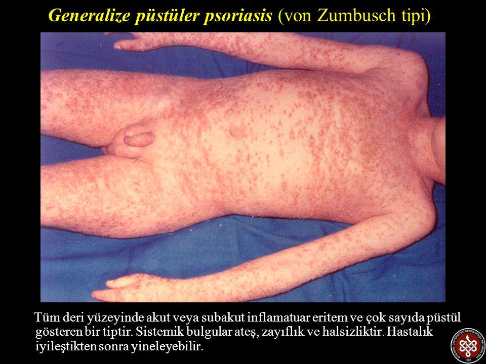 Tüm deri yüzeyinde akut veya subakut inflamatuar eritem ve çok sayıda püstül gösteren bir tiptir. Sistemik bulgular ateş, zayıflık ve halsizliktir. Ha