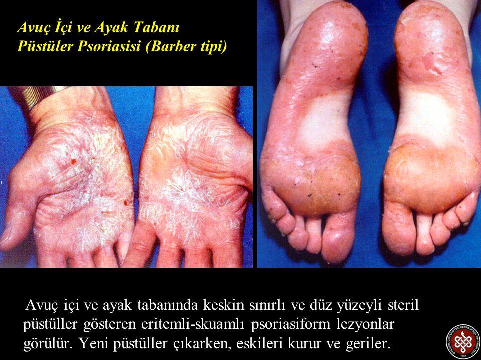 Avuç içi ve ayak tabanında keskin sınırlı ve düz yüzeyli steril püstüller gösteren eritemli-skuamlı psoriasiform lezyonlar görülür. Yeni püstüller çık