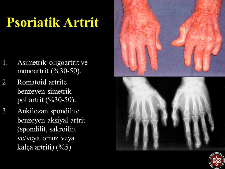 Psoriatik Artrit 1.Asimetrik oligoartrit ve monoartrit (%30-50). 2.Romatoid artrite benzeyen simetrik poliartrit (%30-50). 3.Ankilozan spondilite benz