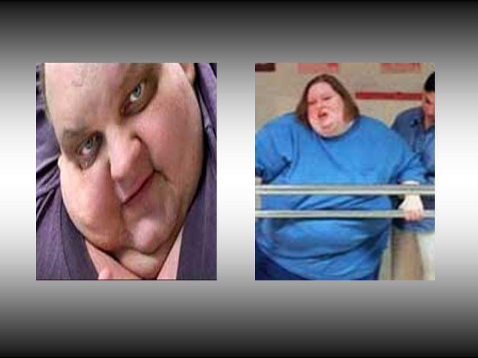 Obezite nasıl ölçülür.