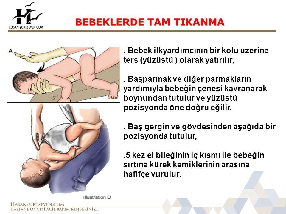BEBEKLERDE TAM TIKANMA.Bebek ilkyardımcının bir kolu üzerine ters (yüzüstü ) olarak yatırılır,.