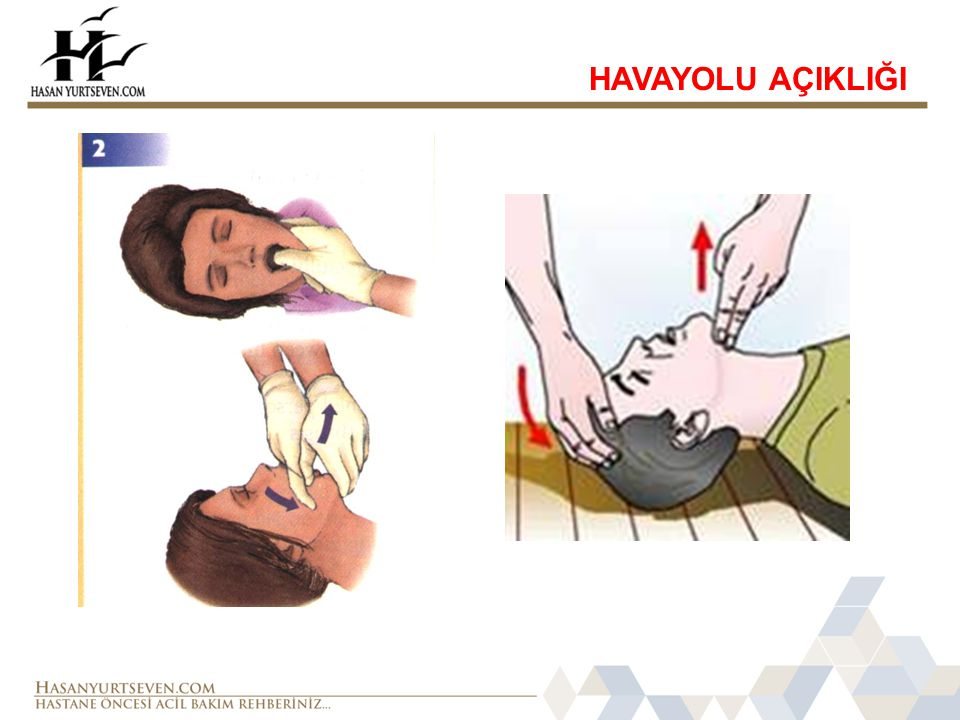 HAVAYOLU AÇIKLIĞI
