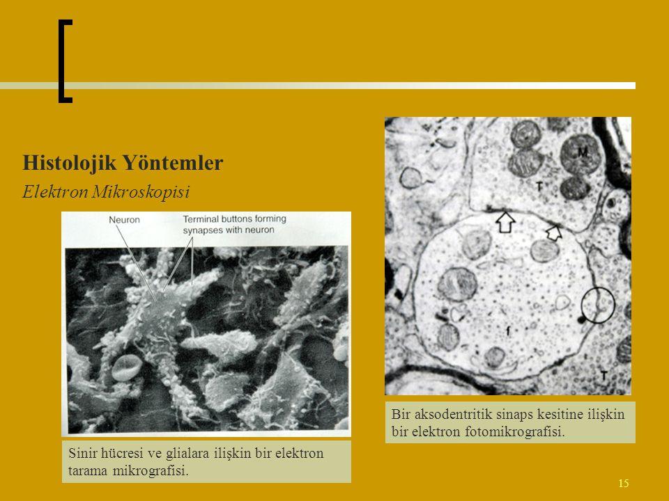 15 Histolojik Yöntemler Elektron Mikroskopisi Bir aksodentritik sinaps kesitine ilişkin bir elektron fotomikrografisi. Sinir hücresi ve glialara ilişk